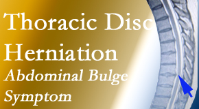 Chiropractic Care cares for thoracic disc herniation that for some patients prompts abdominal pain.