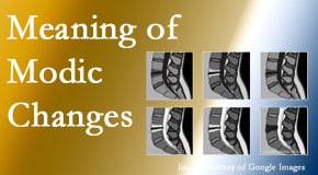 Chiropractic Care sees many back pain and neck pain patients who bring their MRIs with them to the office. Modic changes are often seen.