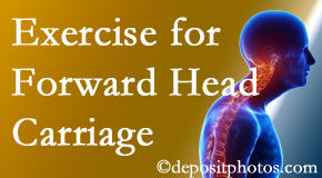 West Palm Beach chiropractic treatment of forward head carriage is two-fold: manipulation and exercise.