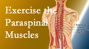 Chiropractic Care explains the importance of paraspinal muscles and their strength for West Palm Beach back pain relief.
