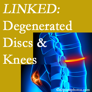 Degenerated discs and degenerated knees are not such strange bedfellows. They are seen to be related. West Palm Beach patients with a loss of disc height due to disc degeneration often also have knee pain related to degeneration.