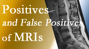 Chiropractic Care carefully decides when and if MRI images are needed to guide the West Palm Beach chiropractic treatment plan.
